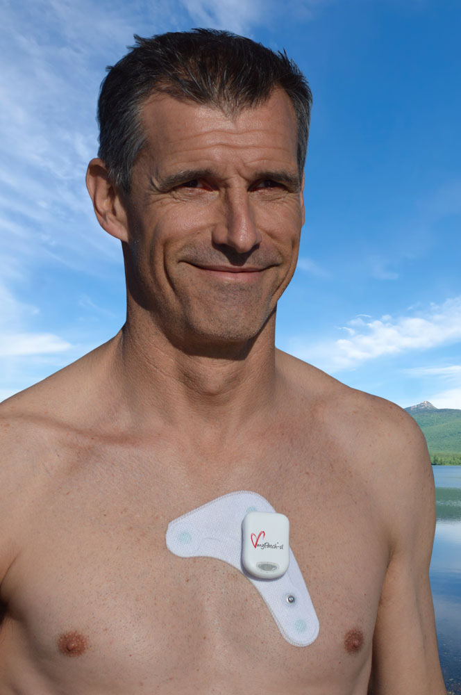 Holter Monitor, Recorder & Software: myPatch Patch Holter ...